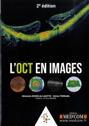 L'OCT en images - med'com - 9782354032678 -