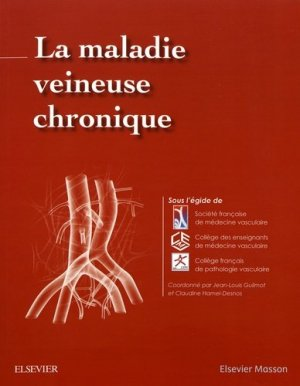 La maladie veineuse chronique - elsevier / masson - 9782294764127 -
