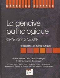 La gencive pathologique de l'enfant à l'adulte - espace id - 9782361340124