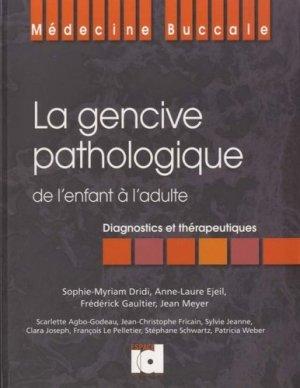 La gencive pathologique de l'enfant à l'adulte - espace id - 9782361340124 -