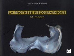 La prothèse piézographique en images - espace id - 9782361340698 -