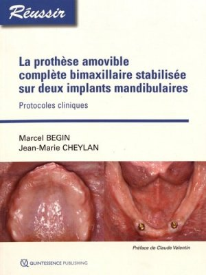 La prothèse amovible complète bimaxillaire stabilisée sur deux implants - quintessence international - 9782366150506
