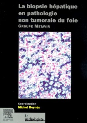 La biopsie hépatique en pathologie non tumorale du foie - elsevier / masson - 9782842991777 -