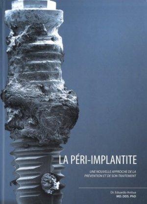 La péri implantite - team work media espagne - 9788487673443