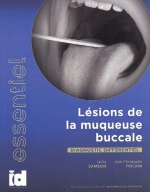 Lésions de la muqueuse buccale - espace id - 9782361340766 -