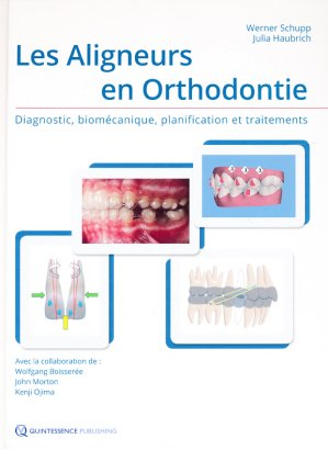 Les aligneurs en orthodontie-quintessence international-9782366150377