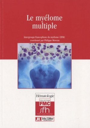 Le myélome multiple - john libbey eurotext - 9782742006687 -
