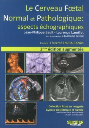 Le cerveau foetal normal et pathologique - sauramps medical - 9782840239239 -