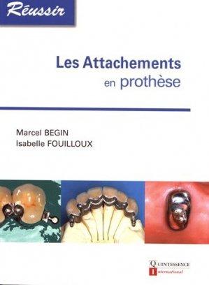 Les attachements en prothèse - quintessence international - 9782912550934 -