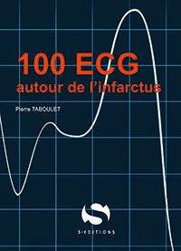 100 ECG autour de l'infarctus - s editions - 9782356402028 -