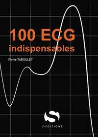 100 ECG infarctus - s editions - 9782356402028 -