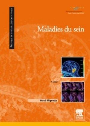Maladies du sein - elsevier / masson - 9782294705434 -
