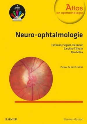 Neuro-ophtalmologie - elsevier / masson - 9782294738982 -