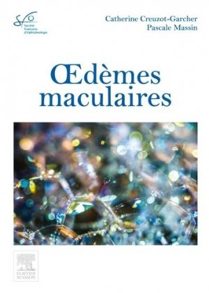 Oedèmes maculaires - elsevier / masson - 9782294749490 -