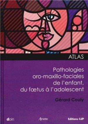 Pathologies oro-maxillo-faciales de l'enfant - doin - 9782704013715 -