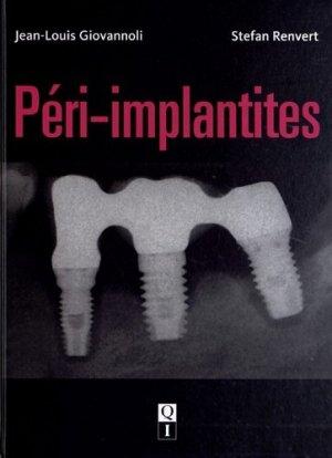 Péri-implantites - quintessence international - 9782912550965 -