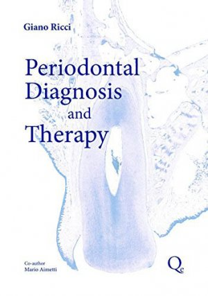 Periodontal Diagnosis and Therapy - quintessence publishing - 9788874921911 -