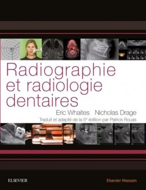 Radiographie et radiologie dentaires - elsevier / masson - 9782294743528 -