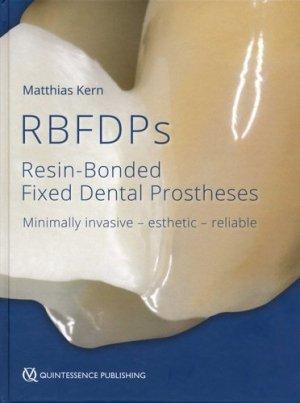 RBFDPs - quintessence publishing - 9781786980205 -