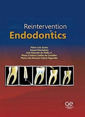 Reintervention in Endodontics - quintessence publishing - 9788578890421 -