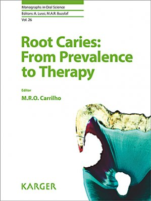 Root Caries: From Prevalence to Therapy-karger -9783318061123