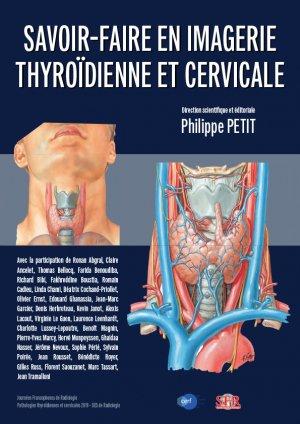 Savoir-faire en imagerie thyroïdienne et cervicale - societe française de radiologie - 9782916669229 -