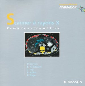 Scanner à rayons X - elsevier / masson - 9782225857423 -