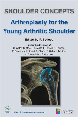 Shoulder concepts arthroplasty for the young arthritic shoulder - sauramps medical - 9791030301687 -