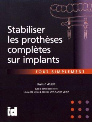 Stabiliser les prothèses complètes sur implants - espace id - 9782361340681 -