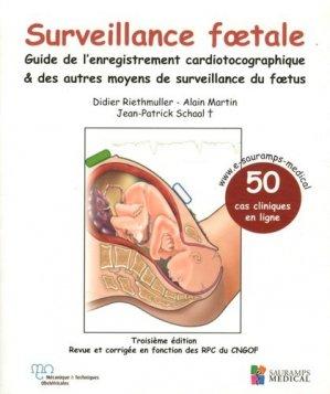 Surveillance foetale - guide de l'enregistrement cardiotocographique & des autres moyens de surveillance du foetus - sauramps medical - 9791030300086 -