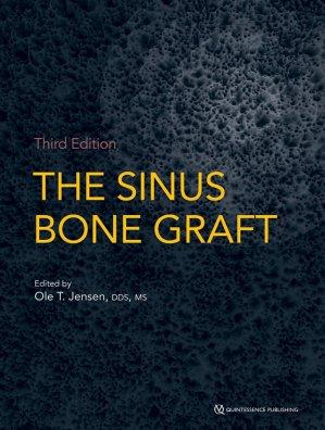 The Sinus Bone Graft - quintessence publishing - 9780867157918 -