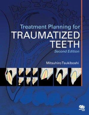Treatment Planning for Traumatized Teeth - quintessence publishing - 9780867155112