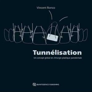 Tunnélisation - quintessence international - 9782366150612 -