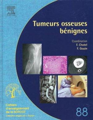 Tumeurs osseuses bénignes - elsevier / masson - 9782842997205 -