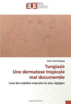 Tungiasis - Une dermatose tropicale mal documentée - editions universitaires europeennes - 9786139554232 -