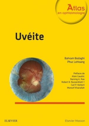 Uvéite-elsevier / masson-9782294744686