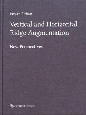 Vertical and Horizontal Ridge Augmentation - quintessence publishing - 9781786980007 -