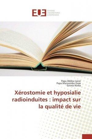 Xérostomie et hyposialie radioinduites : impact sur la qualité de vie - Presses Académiques Francophones - 9783841662613 -
